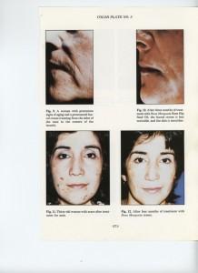 rosehip oil on acne scars
